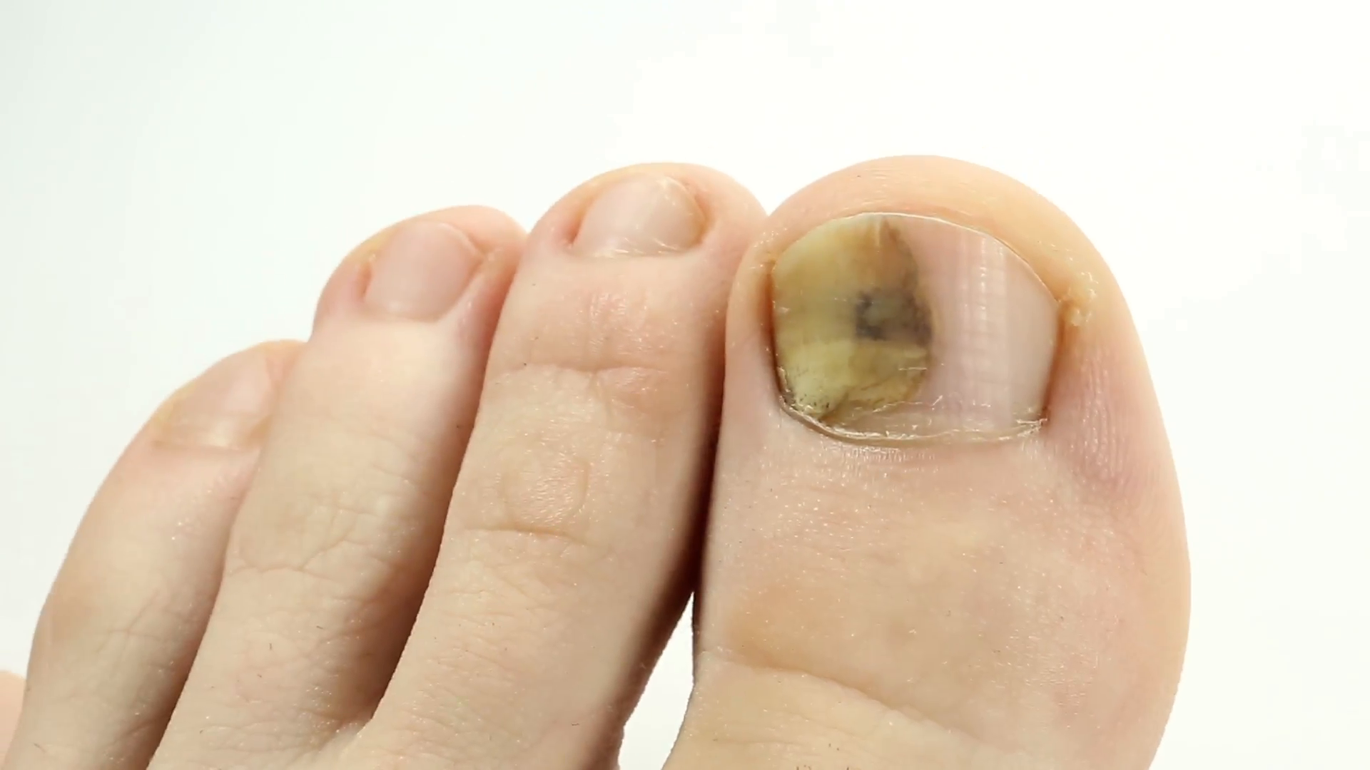 Fungi Toes. Fungus of big toe. Bruise under the nail of big toe. Injury to  nail. Sick nail. Subungual hematoma. Separation of the nail from PlusPng.com  - Big Toe PNG