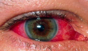 Also smoking weed causes the blood vessels inside eyes to dilate, the  increased flow of blood in the eyes is what causes your eyes to appear red. - Bloodshot Eyes PNG