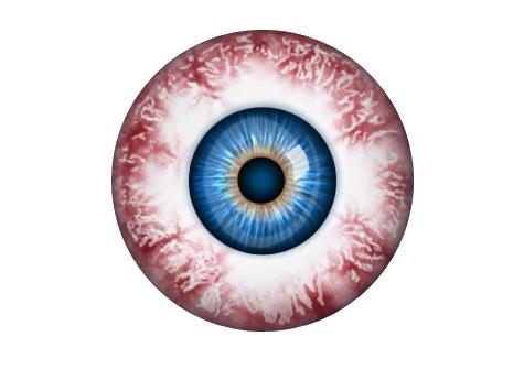Bloodshot Eyeball!