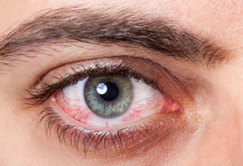 Causes of Red Eye - Bloodshot Eyes PNG