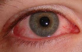 File:Bloodshot eye.png - Bloodshot Eyes PNG