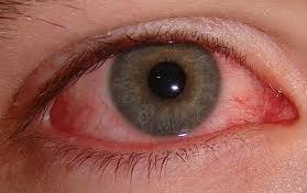 Bloodshot Eyes PNG - 146167