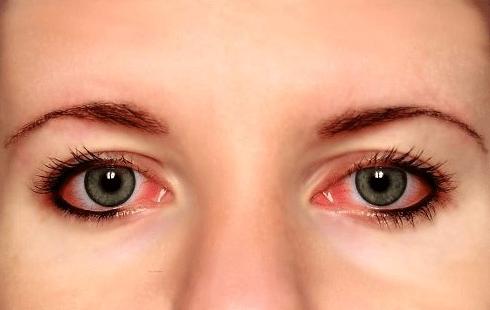 Bloodshot Eyes PNG - 146185