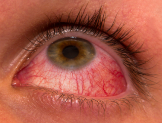 Red Veins in eyes causes