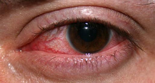 Bloodshot Eyes PNG - 146174