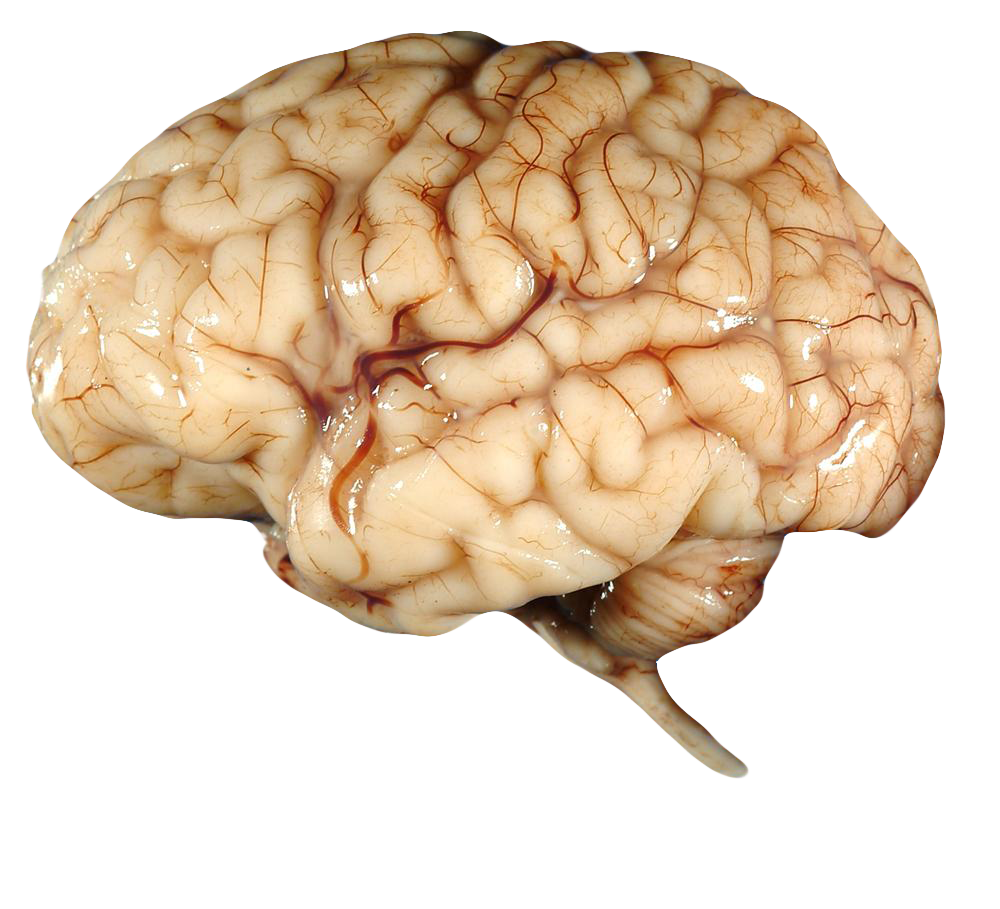 Brain FREE Transparent PNG By AbsurdWordPreferred On DeviantArt - Brain HD PNG