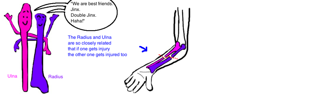 broken forearm in children bbfa fracture - Broken Elbow PNG