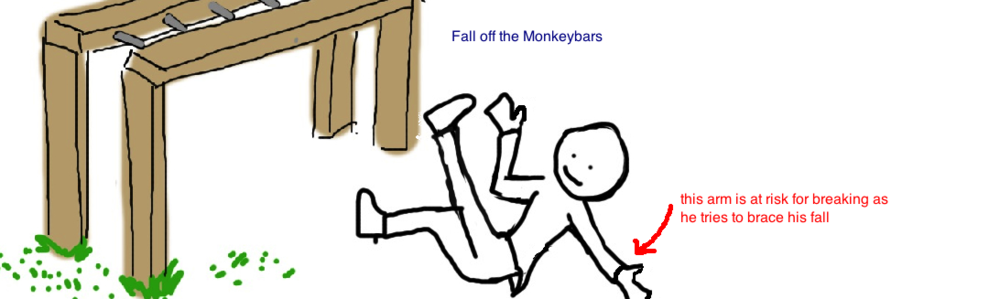 fall off the monkeybars pediatric supracondylar fracture - Broken Elbow PNG