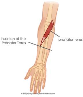 Parent Directory · broken elbow joint 7.png · elbow amputation 3.png PlusPng.com  - Broken Elbow PNG