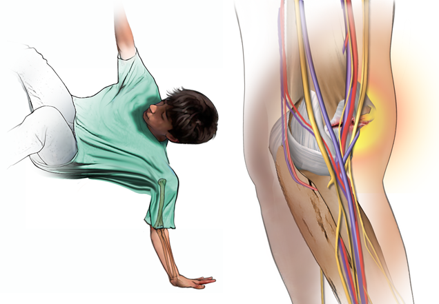 pediatric fall and elbow fracture illustration - Broken Elbow PNG