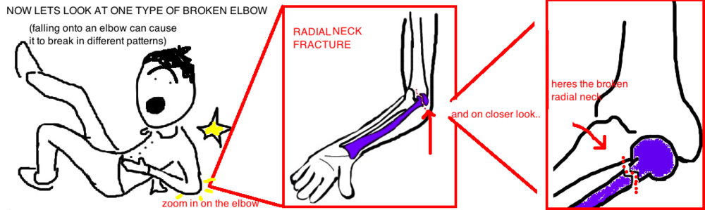 pediatric radial head fracture broken elbow in child - Broken Elbow PNG