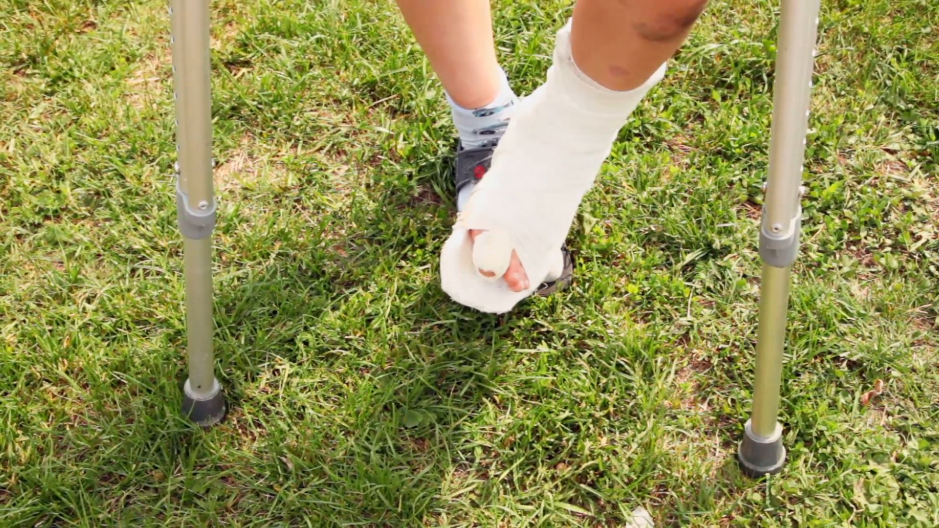Boy Makes Steps By Injured Leg With Broken Finger Stock Video Footage -  VideoBlocks - Broken Leg PNG HD