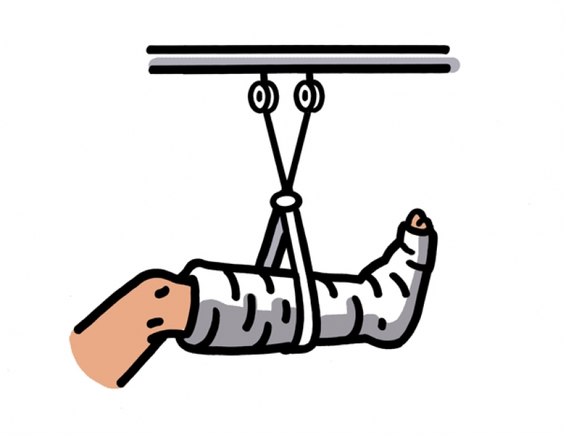 broken foot clipart broken foot clipart broken leg clipart clipart kid 605  X 466 - Broken Leg PNG HD