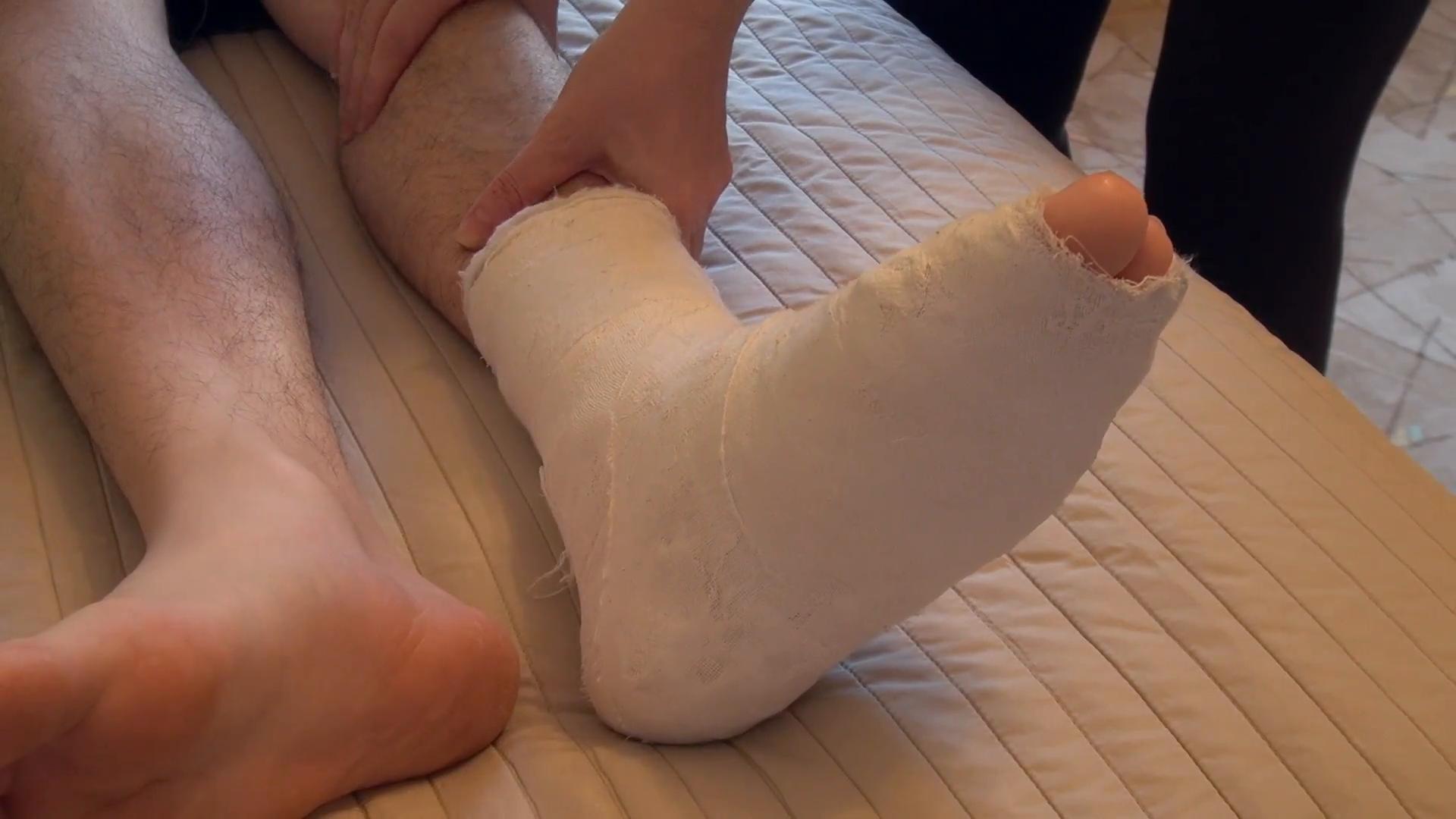 Broken Leg PNG HD - 120551