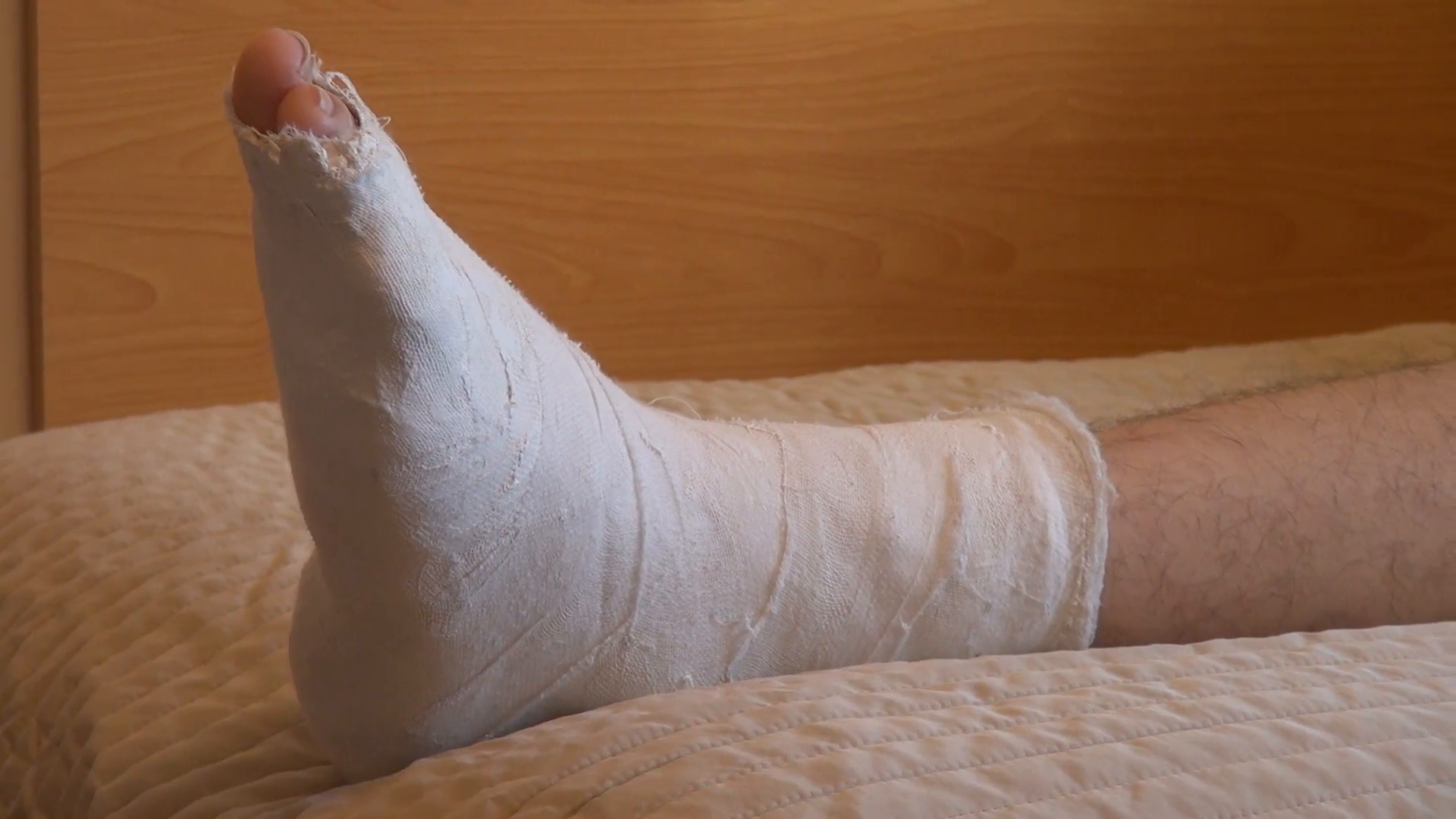 Little girl with broken leg in plaster cast Stock Video Footage . - Broken Leg PNG HD