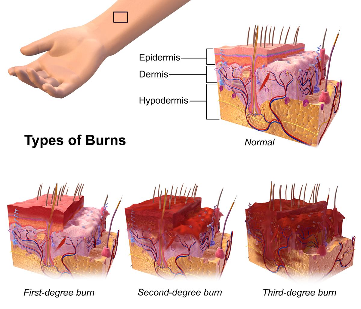 File:Burns.png - Burns PNG