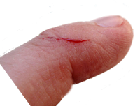 cut-finger - Cut Finger PNG
