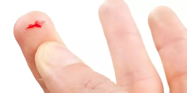 If cut causes small, shallow wound wash with cool pure water to clean blood  and dust. - Cut Finger PNG