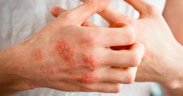 Eczema PNG-PlusPNG.com-600 - Eczema PNG