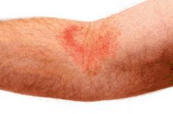 Dealing with Eczema Embarrassment - Eczema PNG