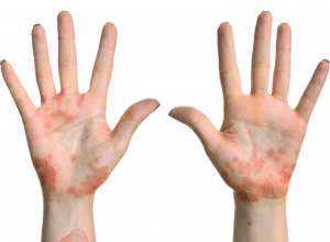 Eczema - Eczema PNG
