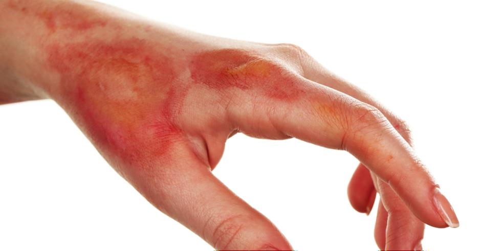 Eczema causes - Eczema PNG