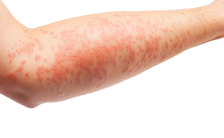 Eczema is a fairly common chronic skin condition characterized by dry,  itchy, red and inflamed rashes that can occur anywhere on the scalp, face  and body. - Eczema PNG