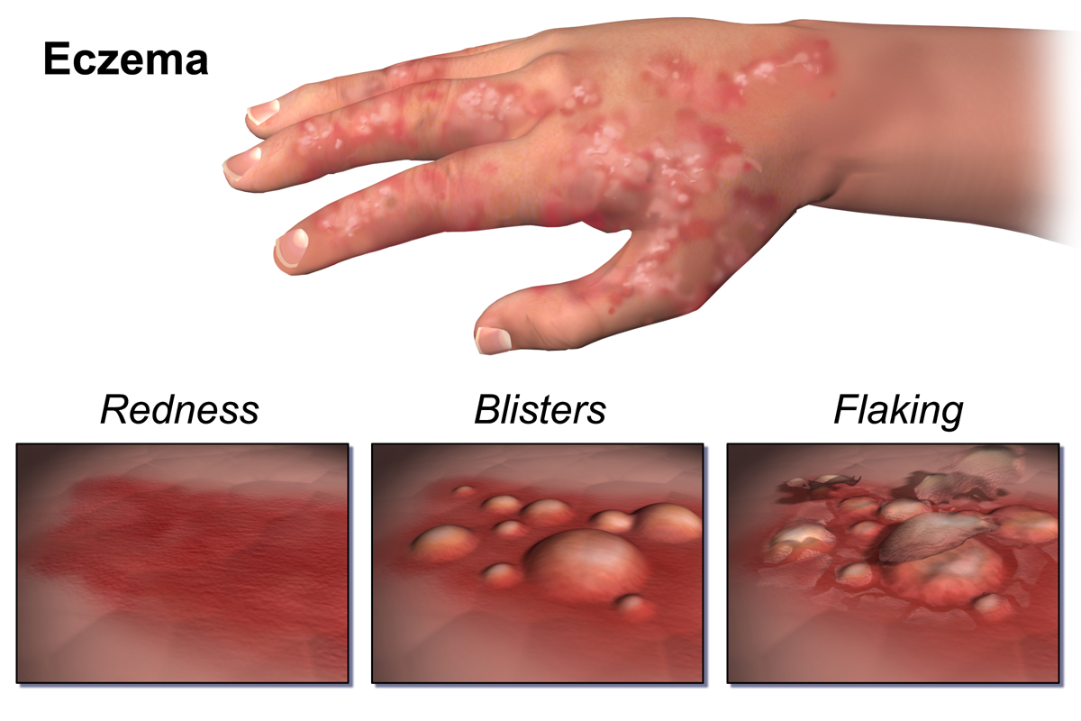 File:Eczema.png - Eczema PNG
