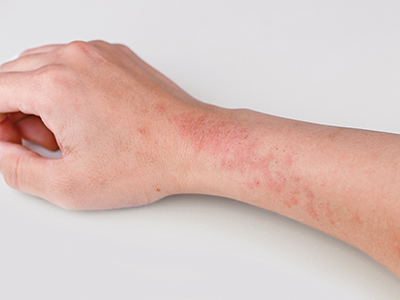 Over time, affected patches of skin may become thick and dark; these  patches can itch all the time, even without an eczema flare. - Eczema PNG