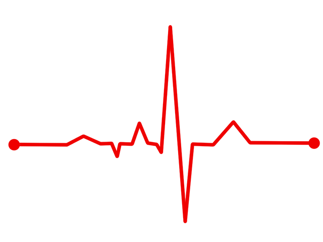 Free illustration: Heart Rate, Bpm, Ecg, Ekg - Free Image on Pixabay -  1375324 - Ekg PNG