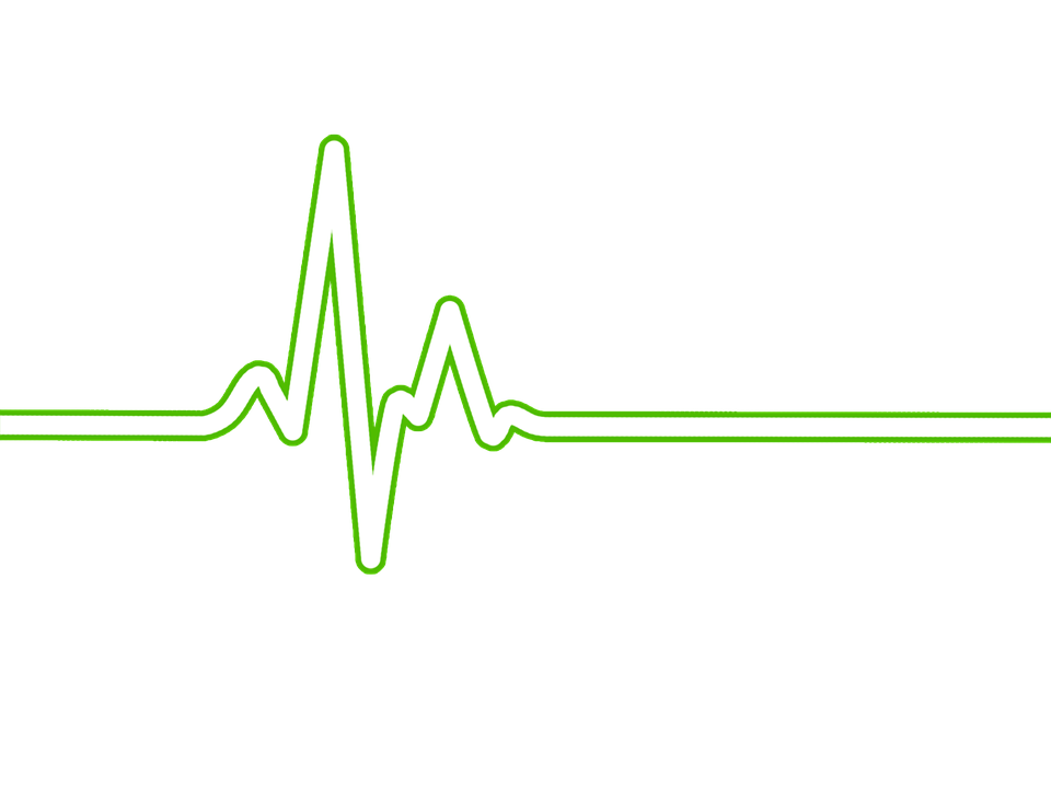 Heart Rate, Bpm, Ecg, Ekg, Electrocardiogram, Ecg Waves - Ekg PNG