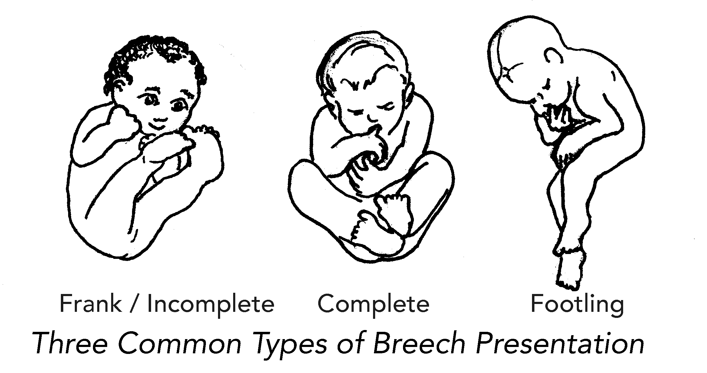 How can you help your breech baby turn head down? - Fetal Position PNG