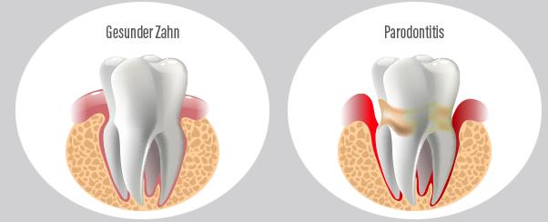 Gesunder Zahn / Parodontitis - Gesunder Zahn PNG