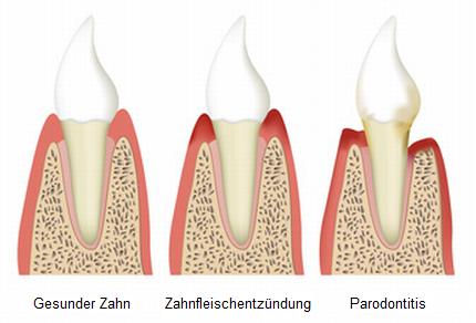 Gesunder Zahn - Zahnfleischentzündung - Parodontitis - Gesunder Zahn PNG
