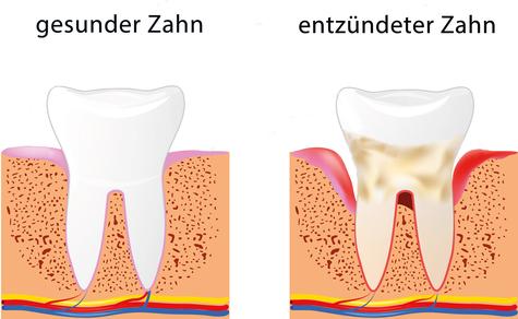 Immer wieder kommen Patientinnen und Patienten zu mir und bemerken halb  scherzhaft: u201eIch glaube, meine Zähne werden immer länger!u201c Frage ich dann  nach, PlusPng.com  - Gesunder Zahn PNG