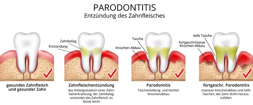 Parodontologie - Gesunder Zahn PNG