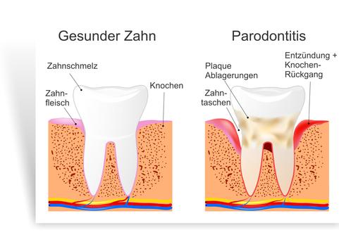Parodontose Behandlung Zahnarzt Bingen - Gesunder Zahn PNG