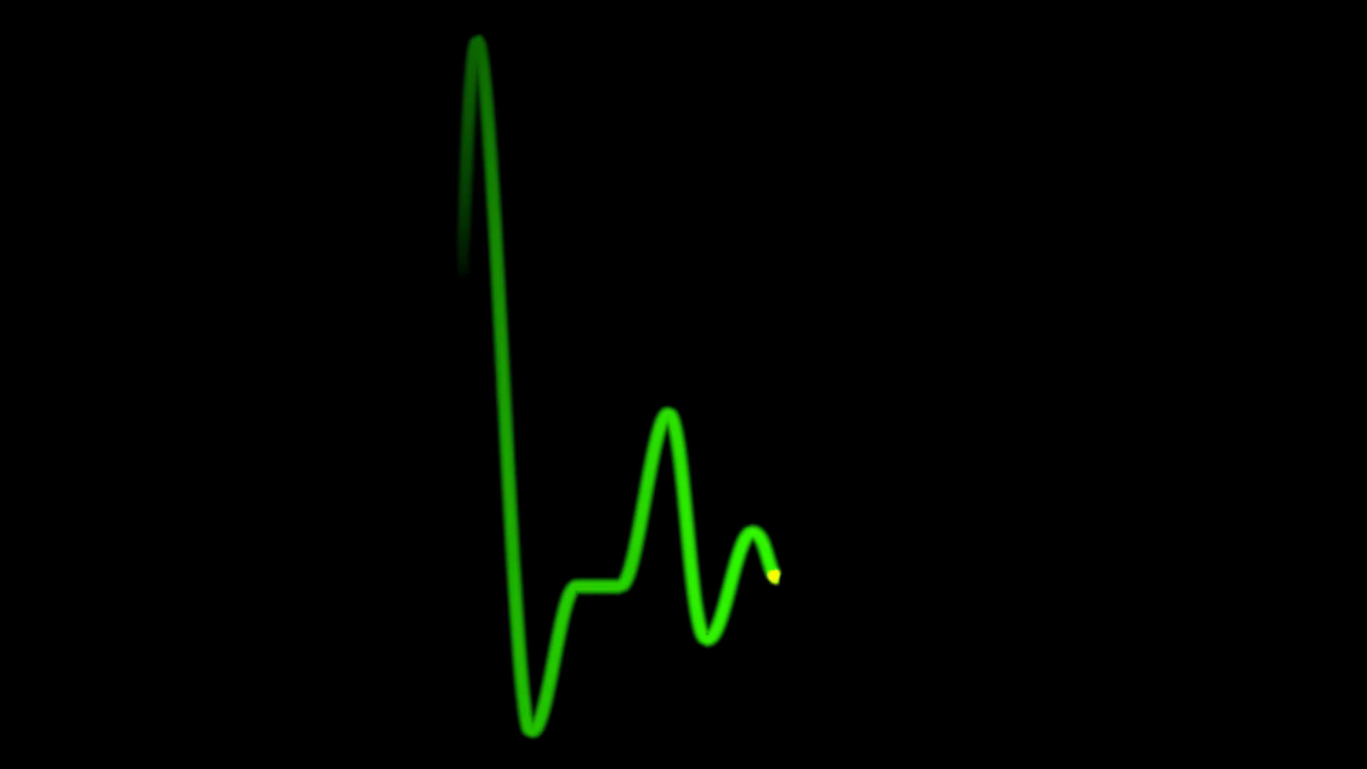 Green heart pulse line. Animation of EKG heart beat on black background,  loopable, alpha channel included Motion Background - VideoBlocks - Heart Beat PNG HD