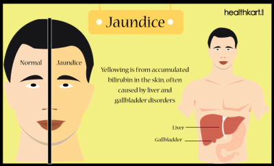 Jaundice PNG-PlusPNG.com-400 - Jaundice PNG