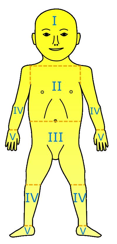 File:Neonatal jaundice.png - Jaundice PNG