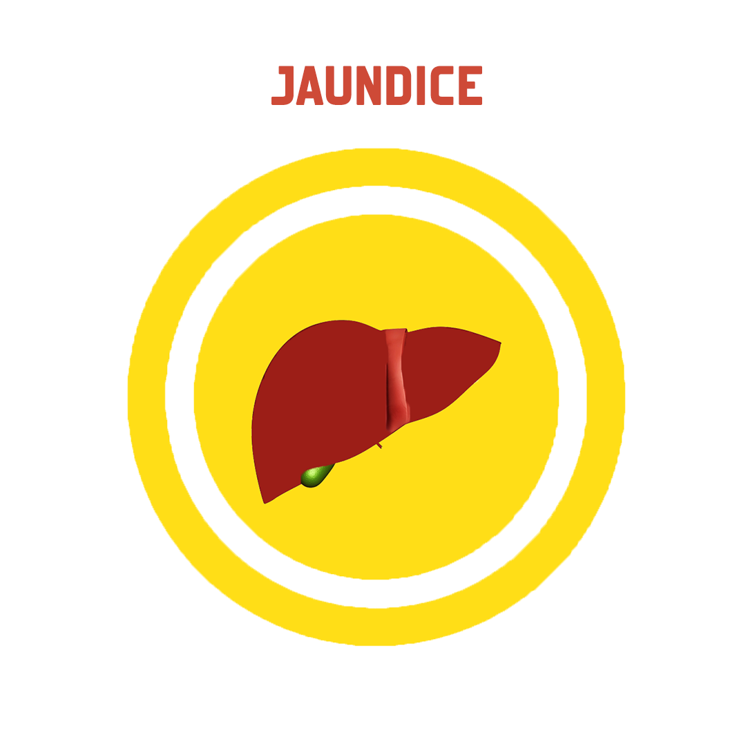 Jaundice - Jaundice PNG