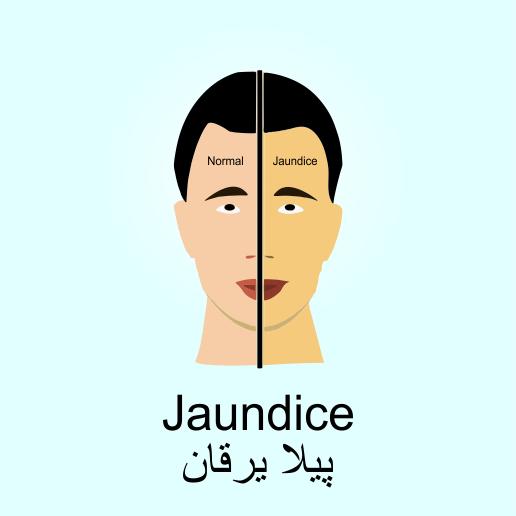 Jaundice ( پیلا یرقان ) - Jaundice PNG