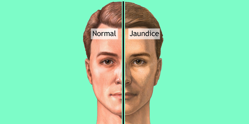 Jaundice Symptoms - Jaundice PNG