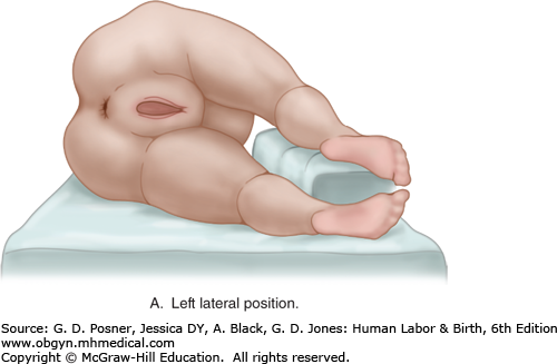 Image not available. - Labor Birth PNG