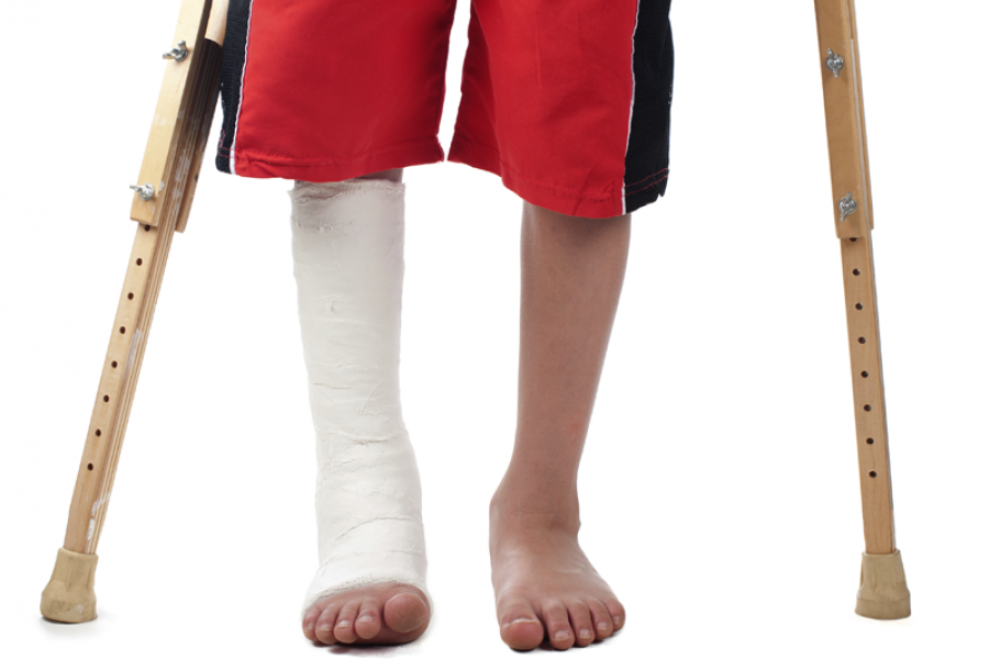 00_Medical_Device_Tax_02.png. Child with leg in cast PlusPng.com  - Leg Cast PNG