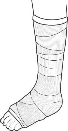 leg cast 2 - Leg Cast PNG