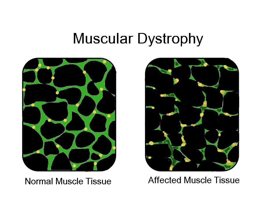 Muscular Dystrophy PNG-PlusPN