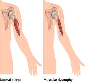 Muscular Dystrophy - Muscular Dystrophy PNG