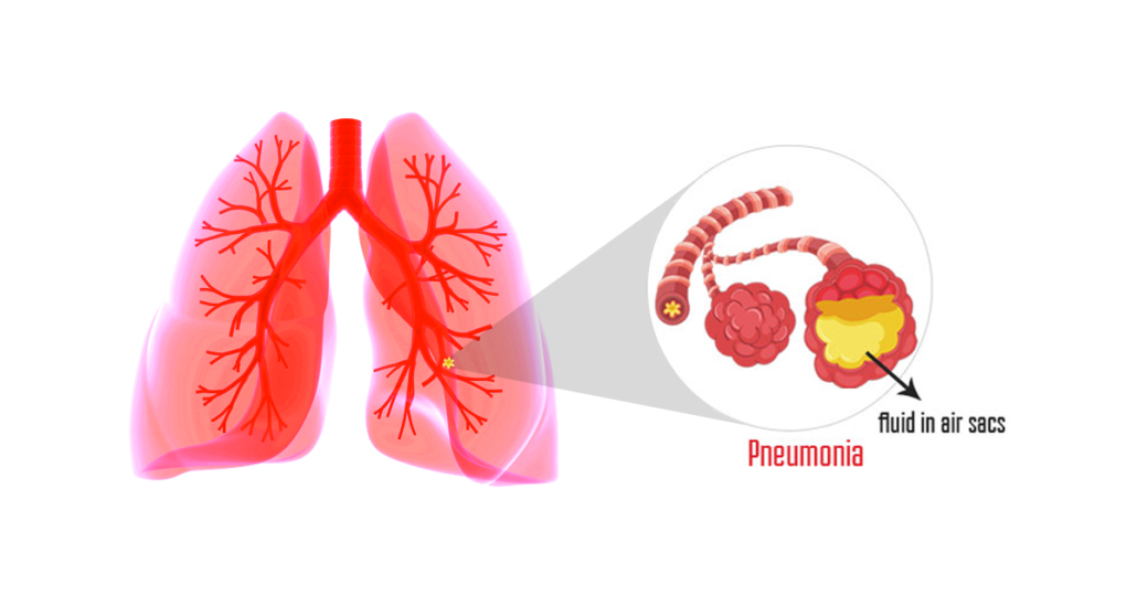 nursing health history present illness of pneumonia Adult health assessment review: test 1 questions -present health or history of present illness-for or crackles of a consolidated area of the lung in pneumonia.
