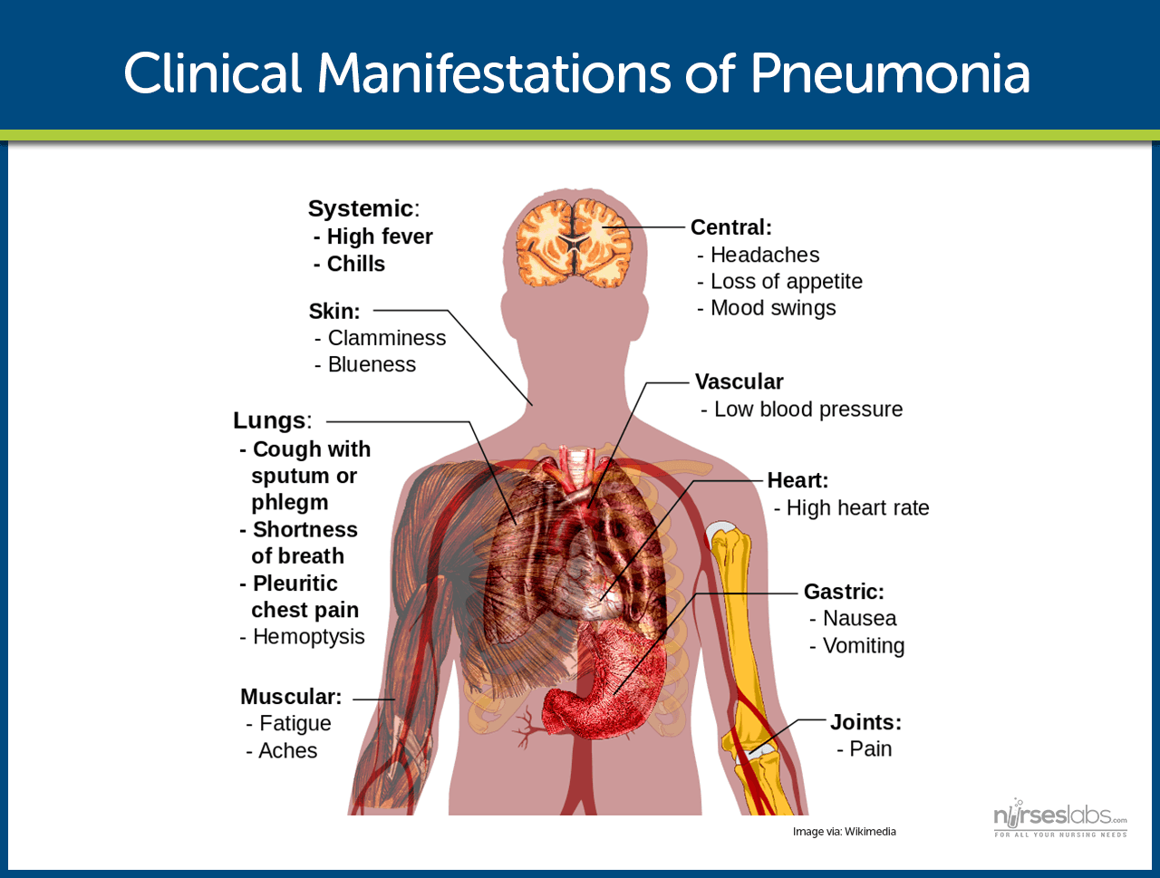 Clinical Manifestations - Pneumonia Patient PNG